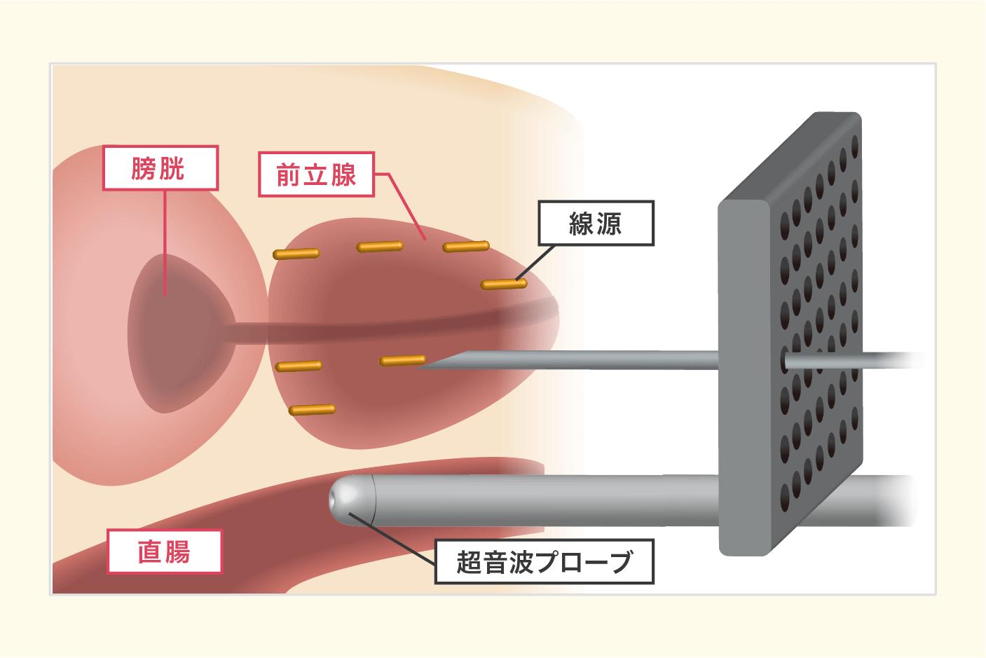 癌 治療 前立腺 放射線 高リスク前立腺癌に対する手術が増えて来た:がんナビ