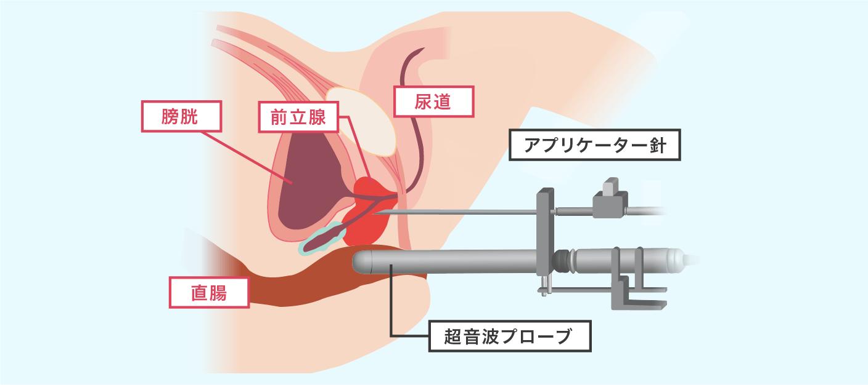 小線源治療のイメージ画像
