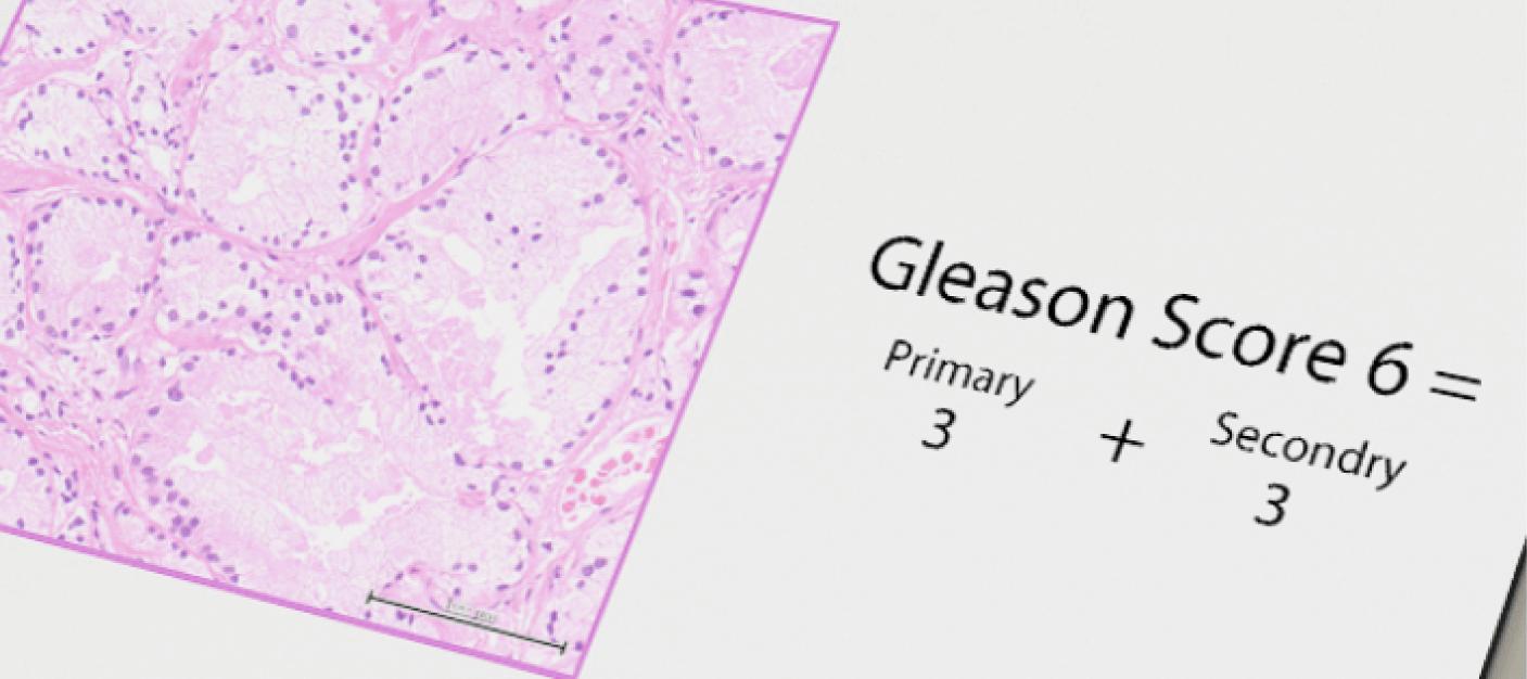 前立腺がんの治療方針を左右する「ステージ」と「グリソンスコア」イメージ画像