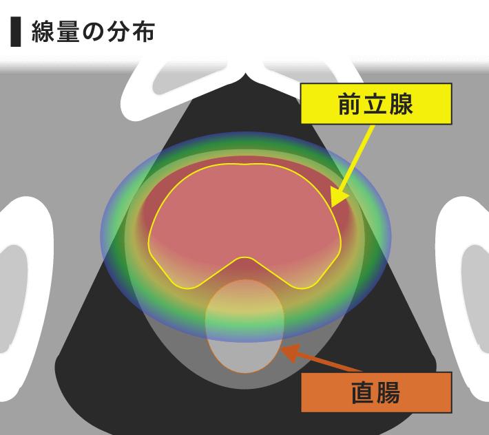 癌 治療 前立腺 放射線 限局性前立腺がんの治療