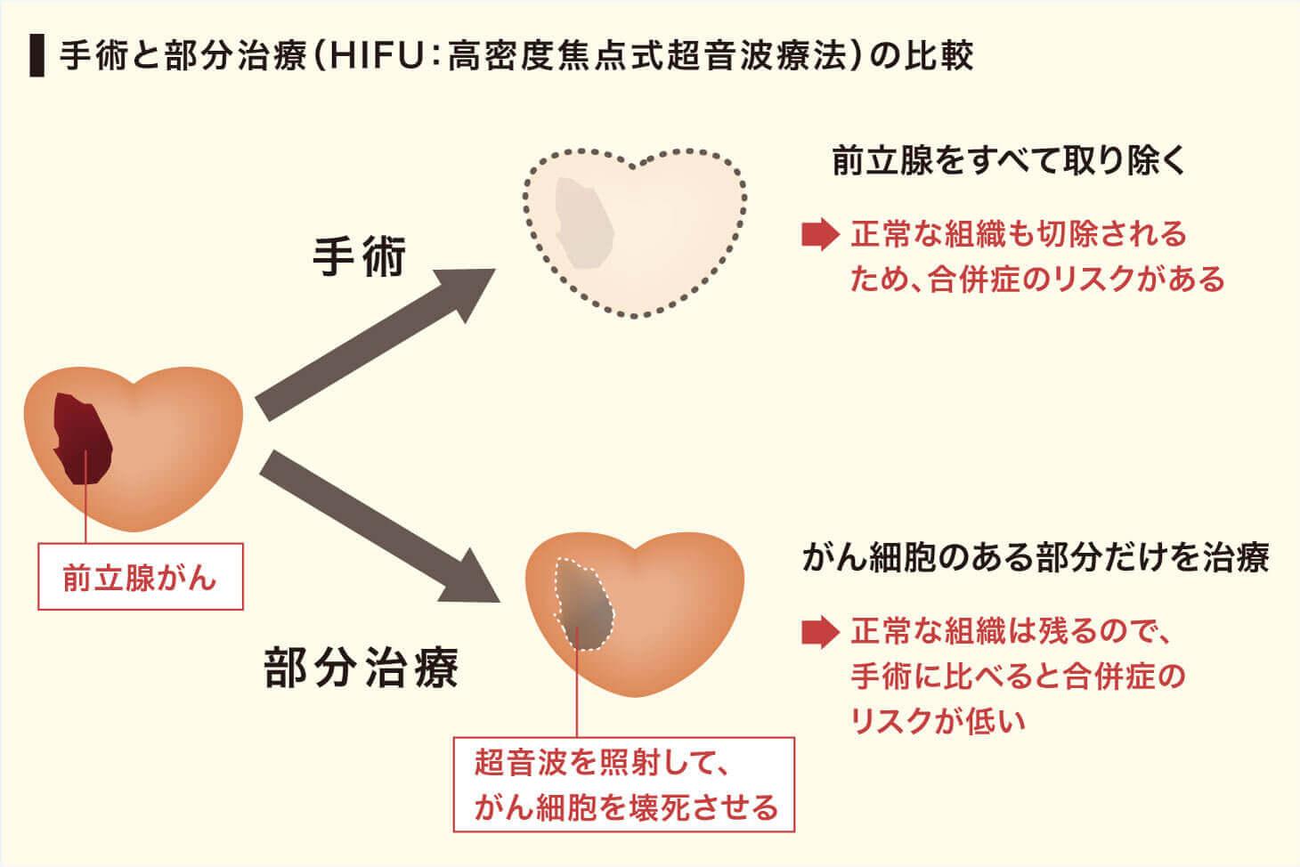 手術と部分治療(HIFU:高密度焦点式超音波療法)の比較図