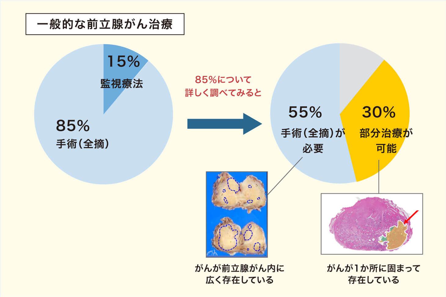 前立腺がんの30%は前立腺部分治療が可能