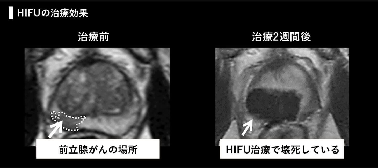 HIFUの治療効果の治療前と治療2週間後の画像