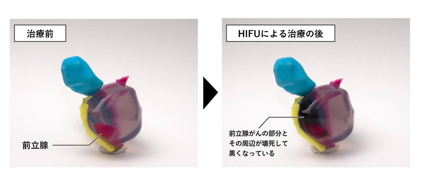 HIFUの治療の前後をモデルで示した画像