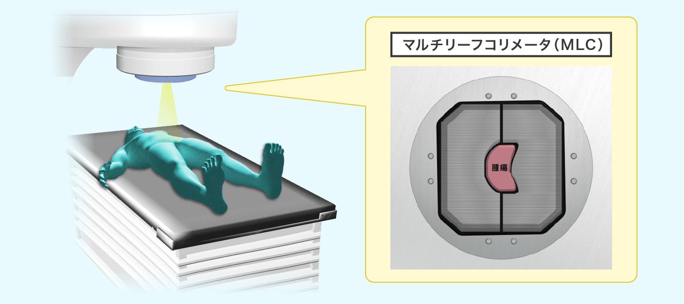 放射線外部照射療法のイメージ画像