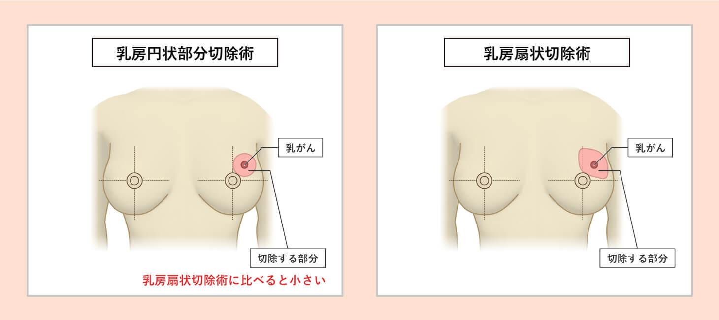 「乳房円状部分切除術」と「乳房扇状切除術」の図