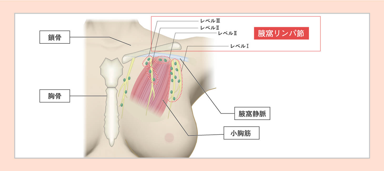 腋窩リンパ節の郭清