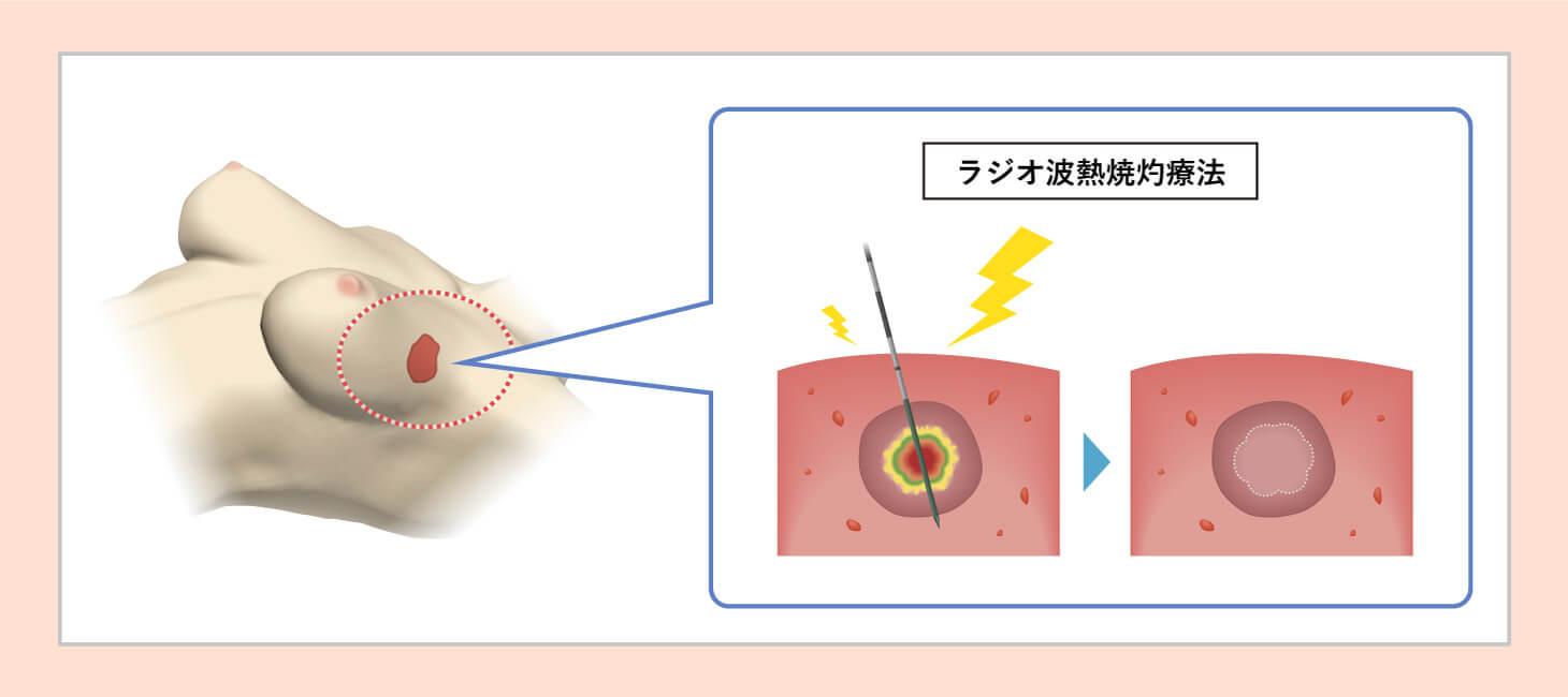 ラジオ波熱焼灼療法の図
