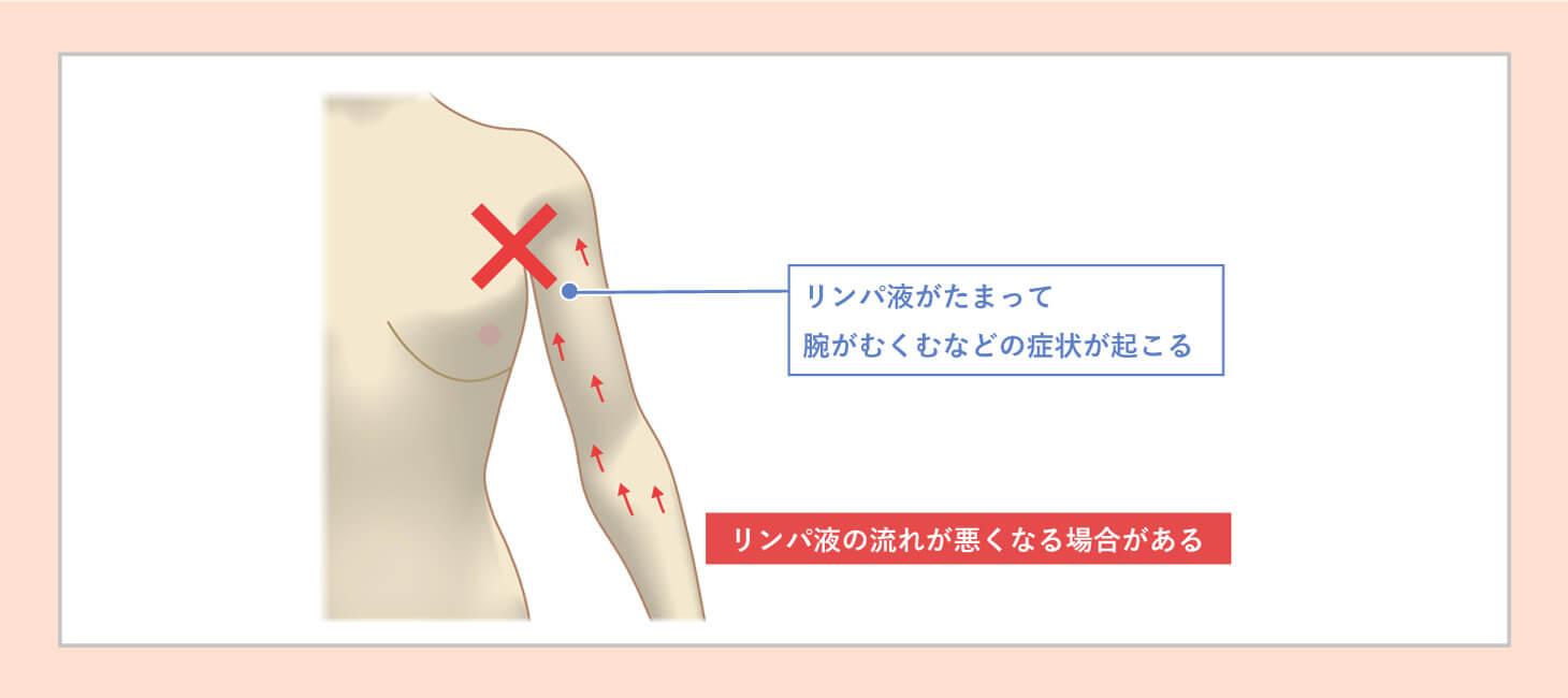 リンパ浮腫が起こるメカニズムの図