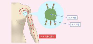 乳がん手術後のむくみ(リンパ浮腫)の予防と早期発見イメージ画像