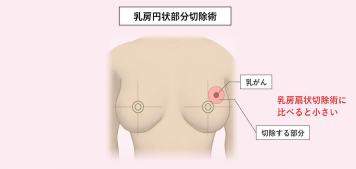 乳がんの手術療法 乳房の温存と乳房再建術のイメージ画像