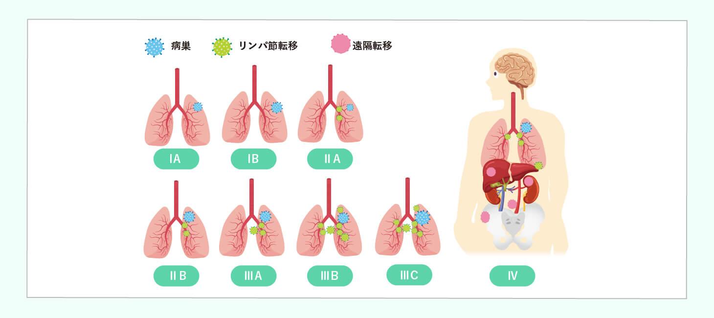 肺がんの治療法選択のイメージ画像