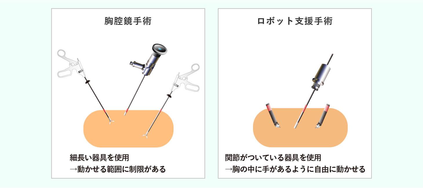 ロボット支援手術(ダヴィンチ手術)で内視鏡手術の精度が向上のイメージ画像