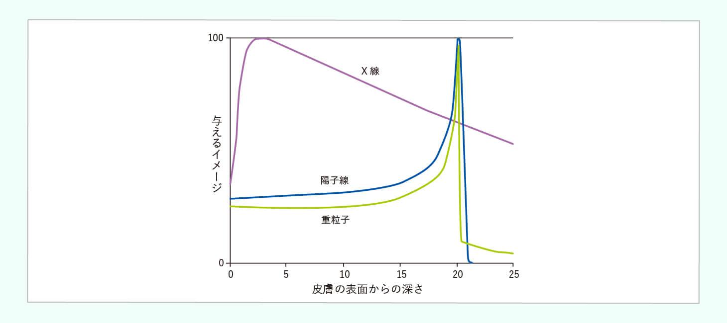 粒子線治療のイメージ画像