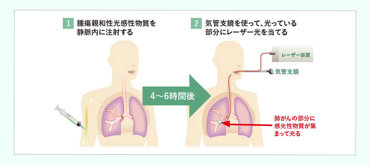 非小細胞肺がん ステージⅠ~ⅢAのイメージ画像