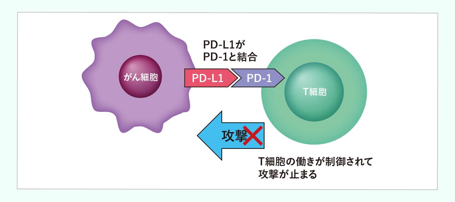 非小細胞肺がん ステージⅣの治療法のイメージ画像