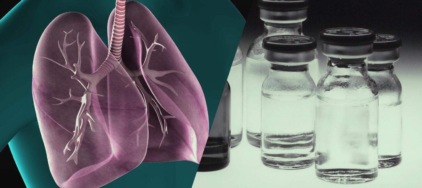 小細胞肺がんの治療法のイメージ画像