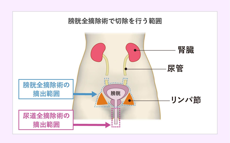 膀胱全摘除術で切除を行う範囲