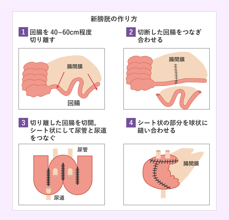 新膀胱の作り方
