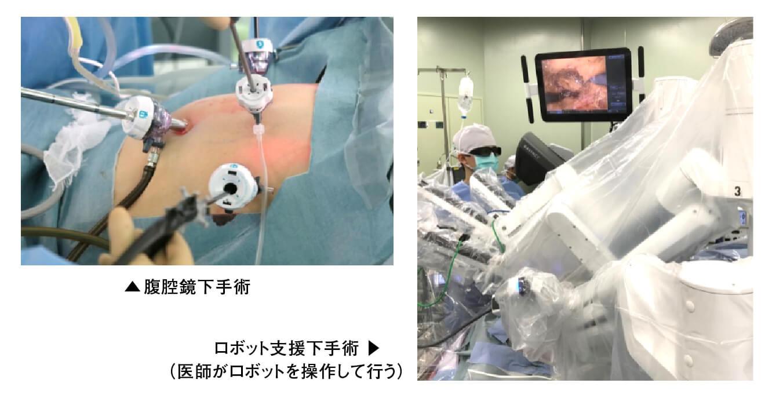 「腹腔鏡下手術」と「ロボット支援下手術」の画像