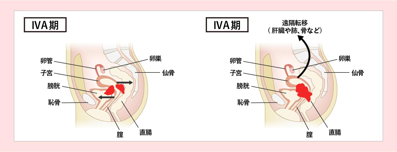 子宮頸がんのステージ4期