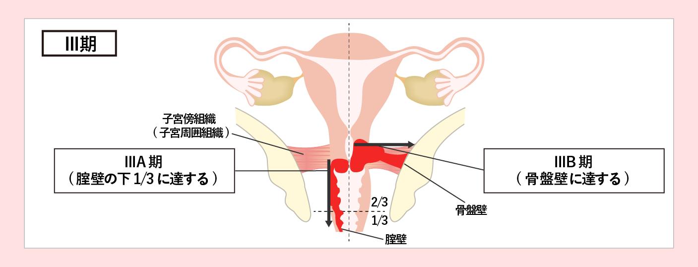 子宮頸がんのステージ3期