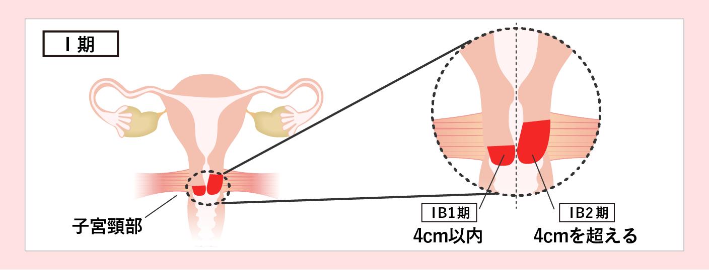 子宮頸がんのステージ1期