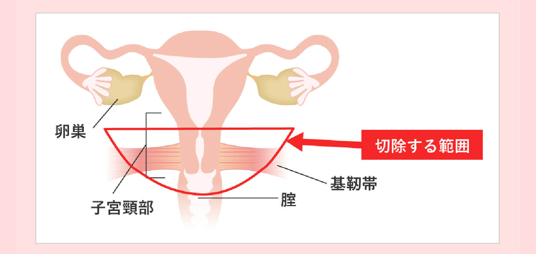 摘出 子宮 卵巣 全