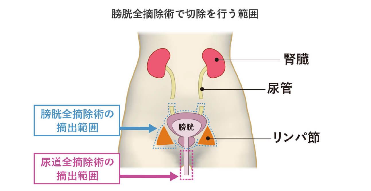 ステージ毎の治療法(ステージ0期~Ⅳ期)