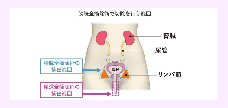筋層浸潤性膀胱がん(ステージⅡ期とⅢ期)の治療法のイメージ画像