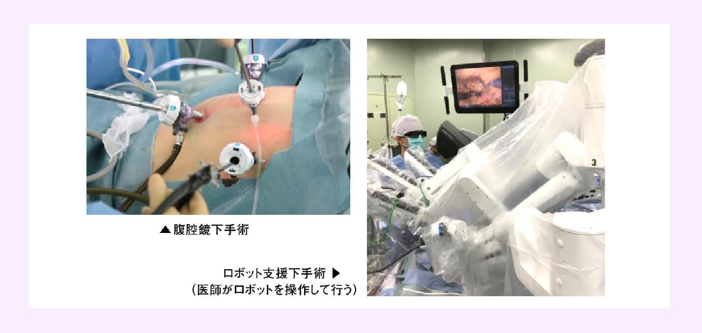 低侵襲手術 「腹腔鏡下手術」と「ロボット支援下手術」の違いは?のイメージ画像