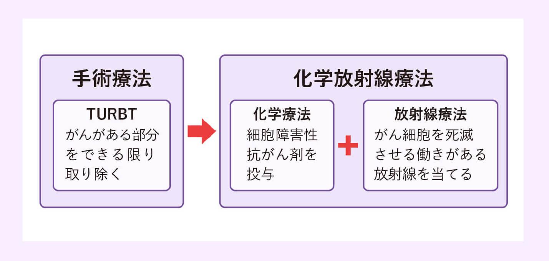 筋層浸潤性膀胱がんの治療法 膀胱温存が可能な「膀胱温存療法」とは?のイメージ画像