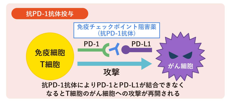 抗PD-1抗体投与
