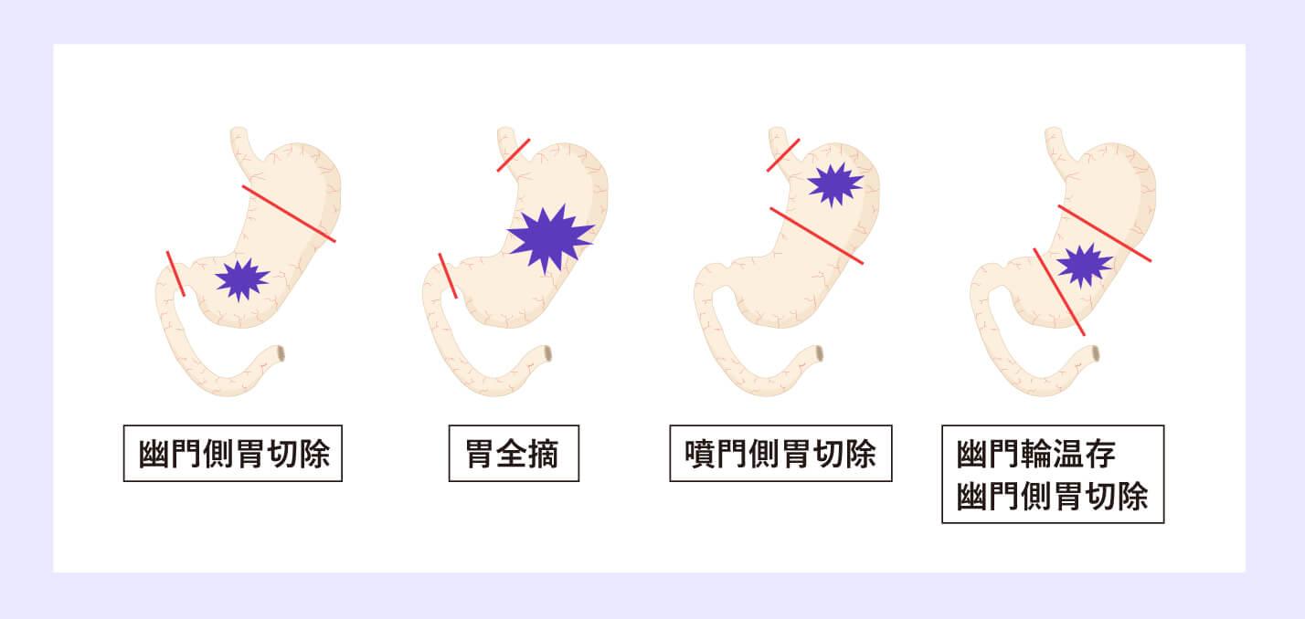 胃がんの治療法のイメージ画像